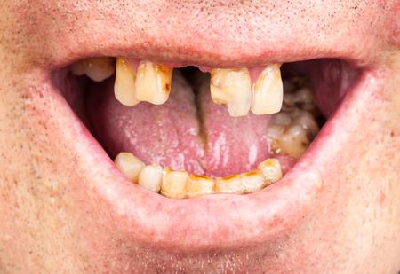 Schlechte Zähne, Raucher