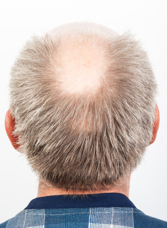 hombre calvo: Perdida de cabello. Hombre calvo