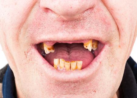 oral cancer: Bad teeth, smoker