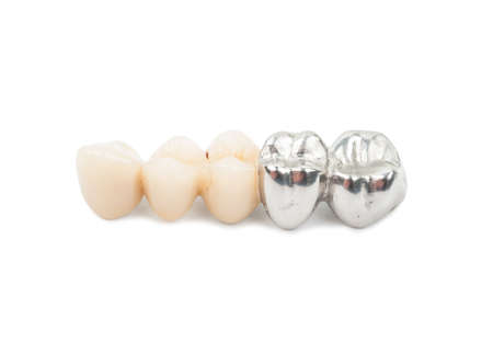 Ceramic tooth crowns and metal pins close-up on white