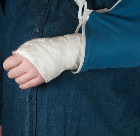 plaster of paris: Fractured hand in a gypsum plaster, close up shot