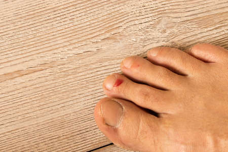 The wound on his leg. A bloody blister on his finger. Close up. On a wooden background