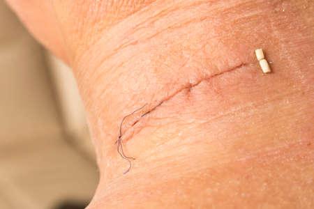 Suture après chirurgie sur le cou humain. Plaie cousue après la chirurgie. Fermer