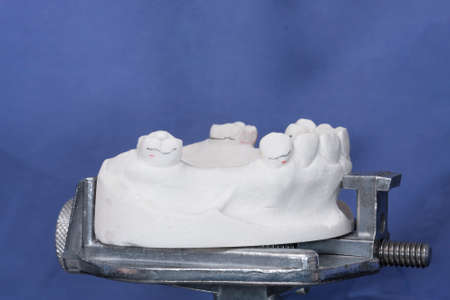 oral rehabilitation process, partial removable prosthesis Фото со стока
