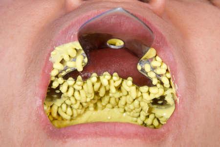 oral rehabilitation process, partial removable prosthesis Imagens
