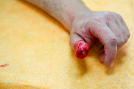 Close-up view of Finger on left thumb human hand is cut hurt.