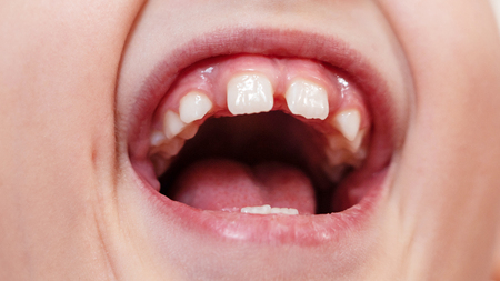 gaps between teeth. rarely growing teeth. wide open mouth. the cry of a child Stock Photo