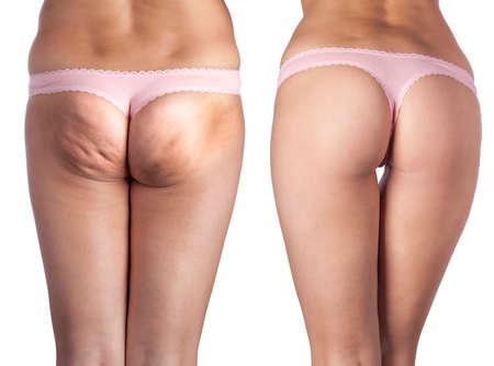 cellulite ass and beautiful ass. Stock Photo