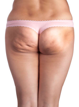 staggered: Skin staggered a cellulite. Isolated on white Stock Photo