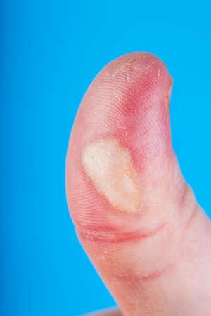 Burn injured finger on blue background