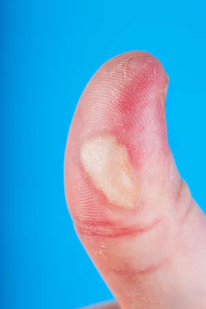 Burn injured finger on blue background