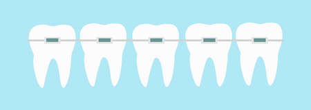 Five teeth with dental braces line on blue background vector illustration. Orthodontic treatment