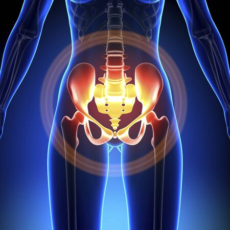 Pelvic pain 3d in blue color Imagens
