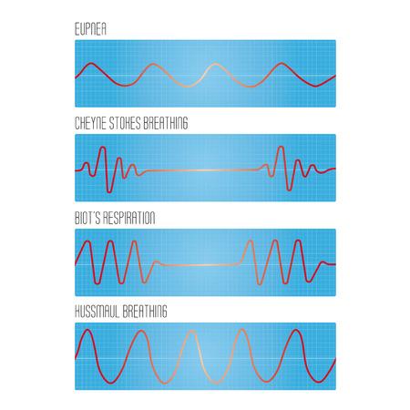 klatki piersiowej: Graph of breathing, the pathological types of breathing: normal breathing, Cheyne-Stokes respiration, Biots respiration, Kussmaul breathing, respiratory diseases, lung diseases