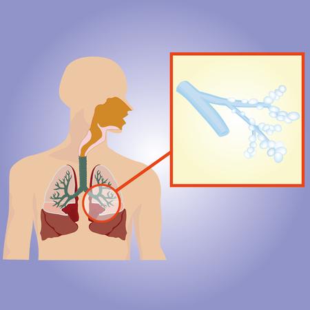 Respiratory system. Bronchi increased