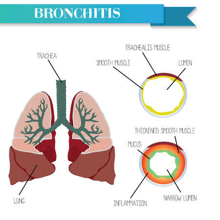 lung disease: Healthy and inflamed bronchus. Chronic Bronchitis.