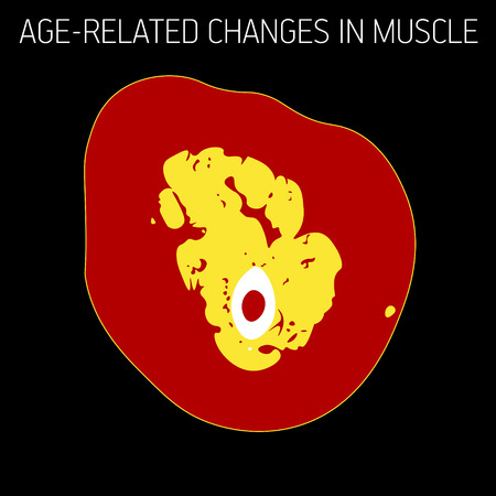 Age-related changes in muscle. Illustration