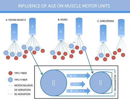 Infographics: in fluence of age on muscle motor units.