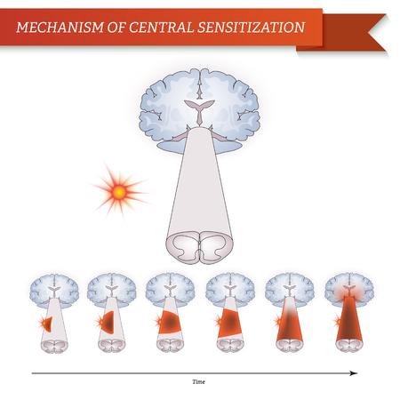 oblongata: Infographic mechanism of central sensitization Illustration