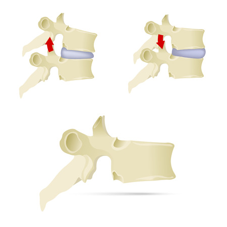 Spine, lumbar vertebra. Facet syndrome, advanced uncovertebral arthrosis, degenerative changes in lumbar vertebra, vertebral bone, lateral view. Flat style, vector illustration. 矢量图像