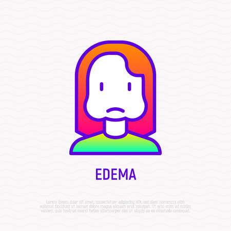 Edema thin line icon: woman with swollen cheeks. Modern vector illustration of allergy symptom. 일러스트