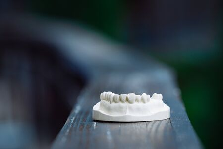 A plastic model of the jaw for prosthetics lies on the table. On a blue background.