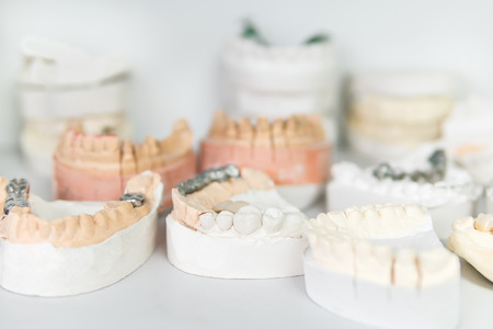 Shelf with lying on her casts of teeth and prosthetic and restorations