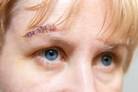 Cut on the womans forehead, sewn up with blue threads. Scar and seam on the head.