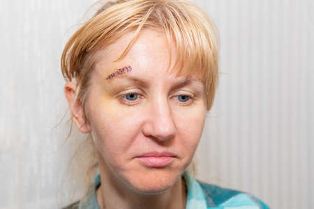 Portrait of a sad woman with a cut above the eyebrow, sewn up with thread.