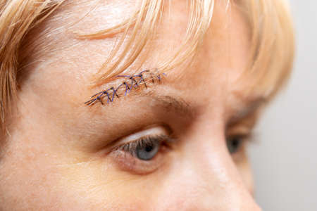 medical suture with protruding threads on a woman face near the eyebrow, close-up