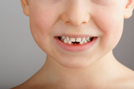 A child's smile without lower baby teeth. A hole in a child's smile. Fun concept. Dental service Foto de archivo