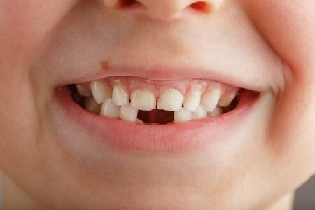 A childs smile without lower baby teeth. A hole in a childs smile. Fun concept. Dental service