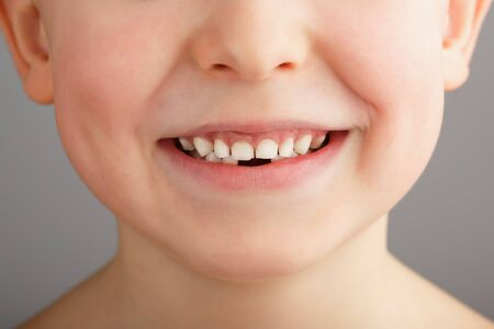 A child's smile without lower baby teeth. A hole in a child's smile. Fun concept. Dental service