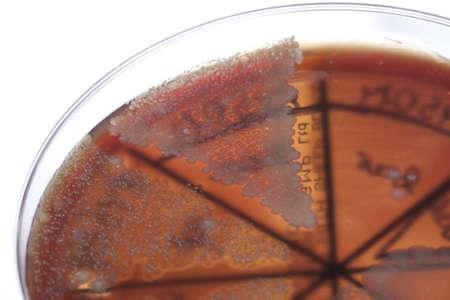 Petri dish close up. Bacteria culture. Stock Photo - 13811460