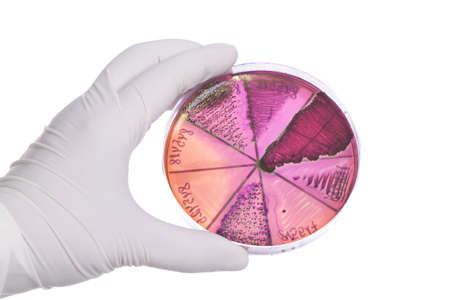 Hand in glove holding petri dish with bacteria culture. photo