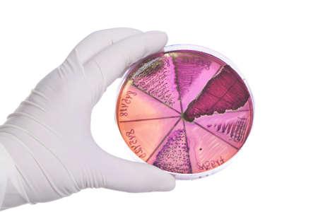 bacterial infection: Mano en guante de celebraci�n placa de Petri con cultivo de bacterias.