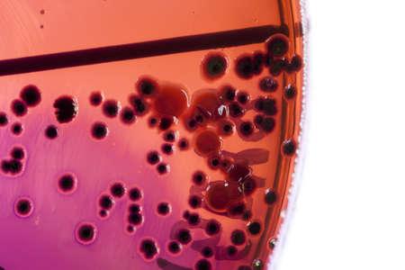 Petri dish close up. Bacteria culture. Stock Photo - 13811508