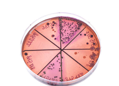 Petri dish close up. Bacteria culture. photo