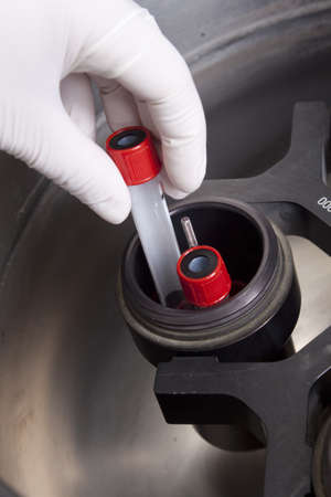 Hand in glove loading blood samples in centrifuge photo