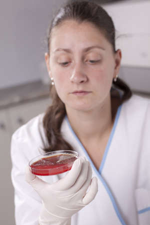 Lab scientist doing research on petri dish photo