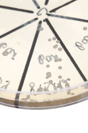 Petri dish close up. Bacteria culture. Stock Photo - 13851112