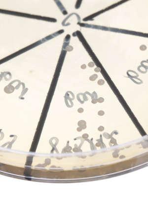 Petri dish close up. Bacteria culture. Stock Photo - 13851112