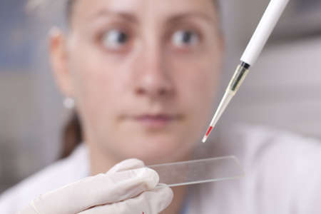 Woman dropping blood drop on sample glass with micro pipette Stock Photo - 14040488