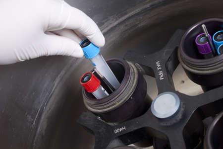 centrifuge: Hand in glove loading blood samples in centrifuge