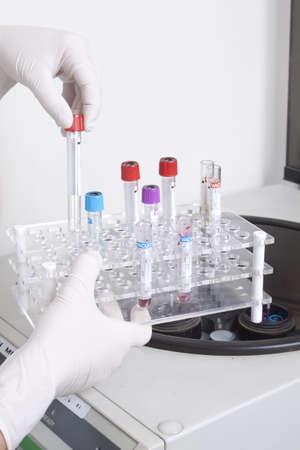 centrifuge: Hand in glove loading blood tubes in centrifuge