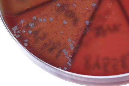 Petri dish close up. Bacteria culture. photo