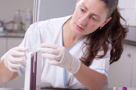 erythrocyte: Medico donna, facendo test di velocit� di sedimentazione degli eritrociti in laboratorio