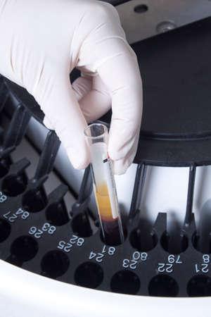 analyzer: Woman loading samples in biochemical laboratory analyzer  Stock Photo