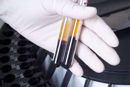 Woman loading samples in biochemical laboratory analyzer  photo