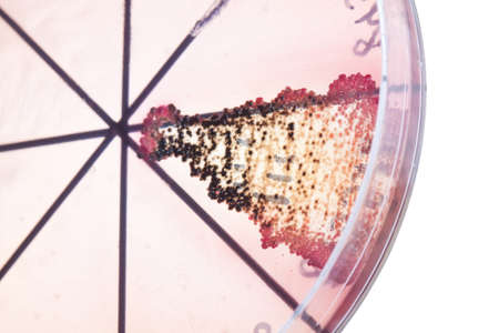 Petri dish close up  Bacteria culture  Stock Photo - 14122038